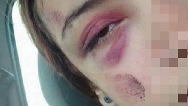 Agnes foi agredida por uma colega de escola Foto: Divulgação