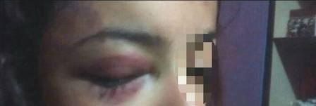 A menina teve ferimentos em todo o rosto Foto: Divulgação