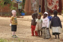 Albinos são mortos para que feiticeiros façam poções da sorte com ossos